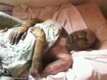 شاهد صورة نادرة ومؤلمة لـ علي عبدالله صالح بعد تعرضه لمحاولة إغتيال المشهد الآن